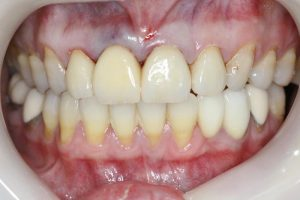 after bridge treatment and with much nicer front teeth.