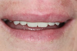 after bridge dental treatment with front tooth repaired.