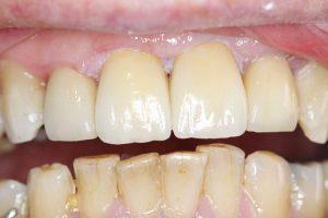 after dental crown procedure.