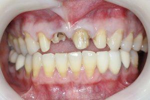 before bridge dental treatment to fix front teeth.