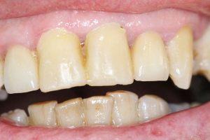 before dental crown procedure.