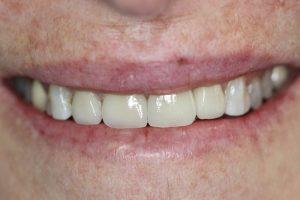 after dental implant